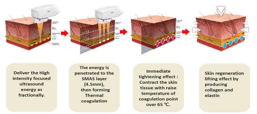how hifu works for skin tightening diagram