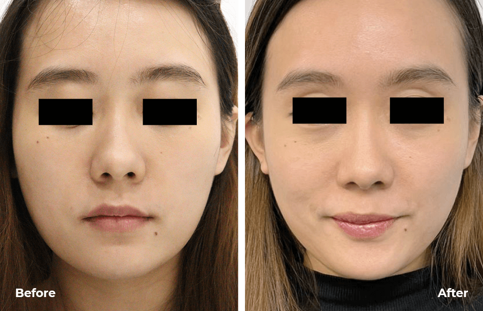 Needleless Profhilo-before-after