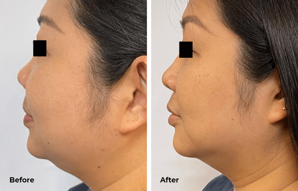 Needleless Profhilo-before-after2