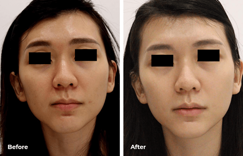Needleless Profhilo-before-after3