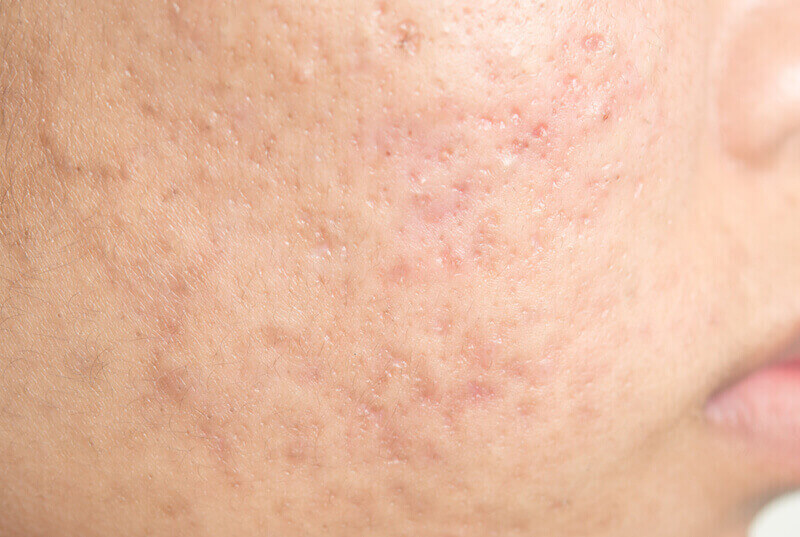 closeup of acne scarring on face