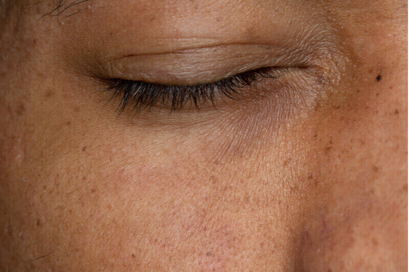 age spots and freckles