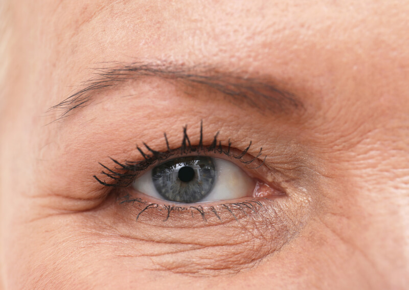 crows feet signs of ageing forties