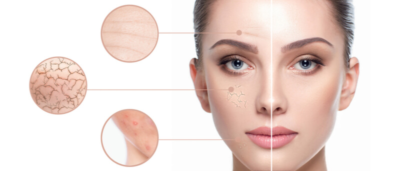 dual ultrasound facial for various skin conditions
