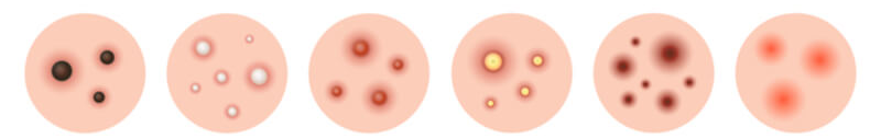 illustration of different types of acne