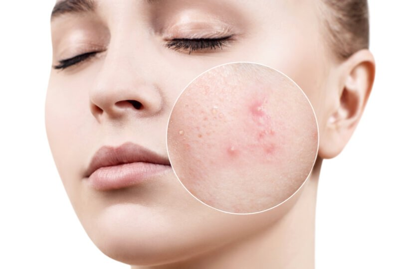 how to prevent adult acne