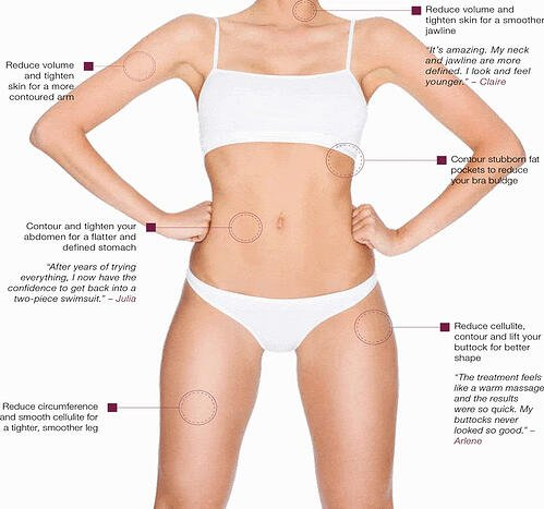 rf body legacy sculpt treatment areas