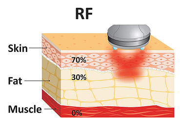typical radiofrequency treatments