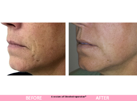 sep facial before after results
