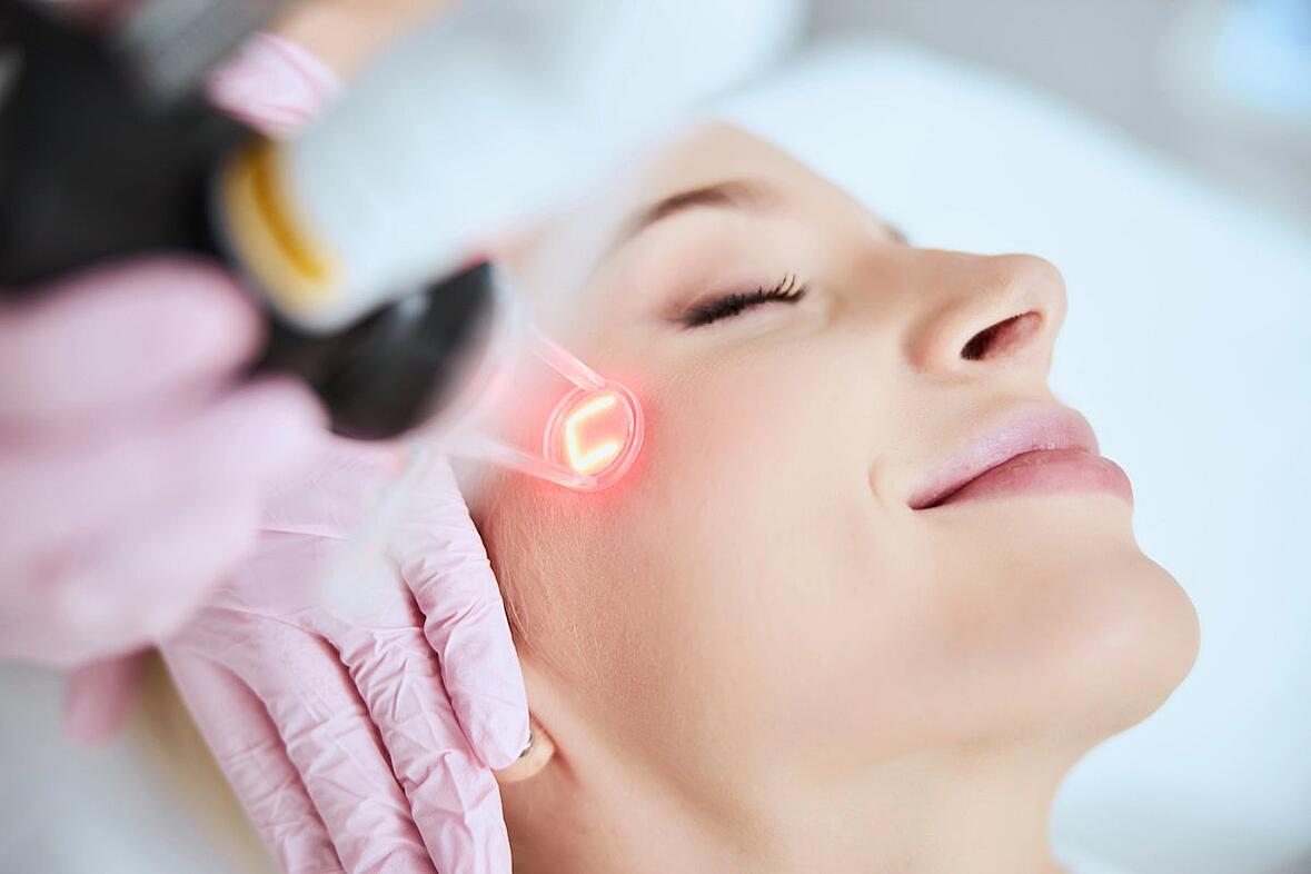 laser resurfacing for acne