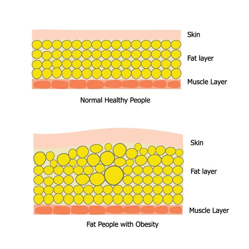skin fat muscle layers