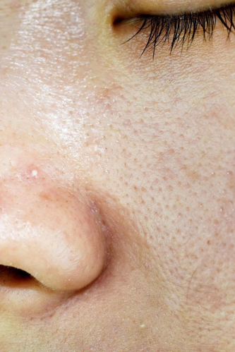 oily congested skin