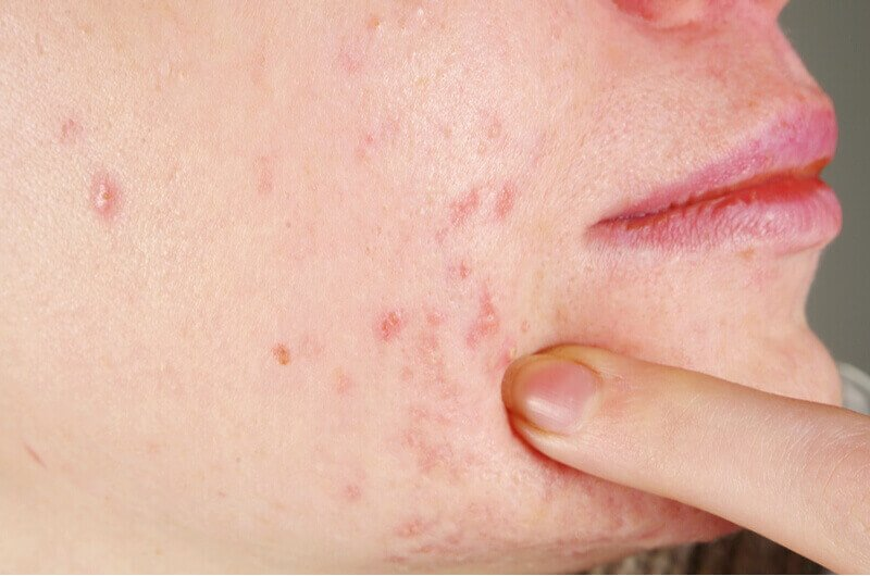 painful and scarring acne
