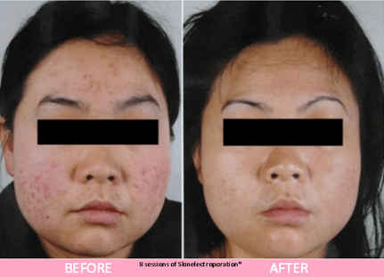 sep miracle facial before after