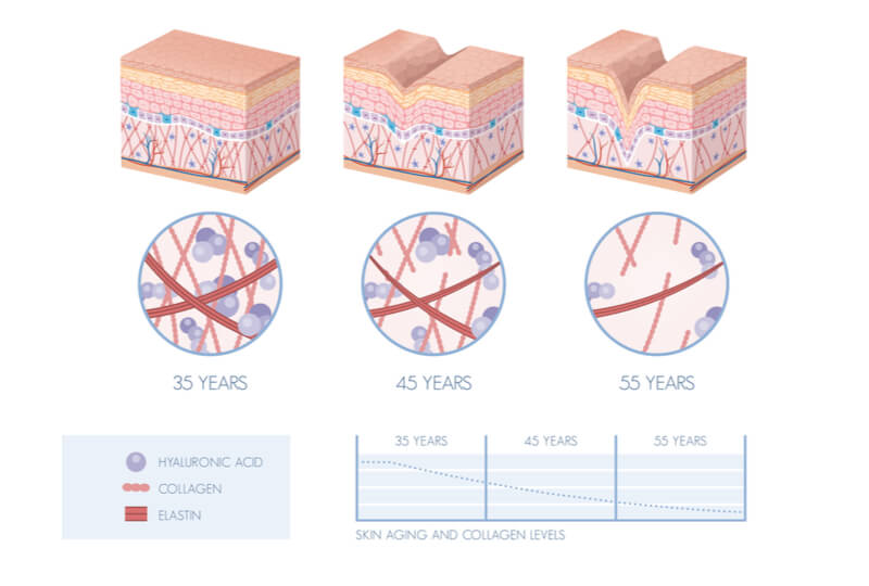 signs of ageing healthy skin diagram