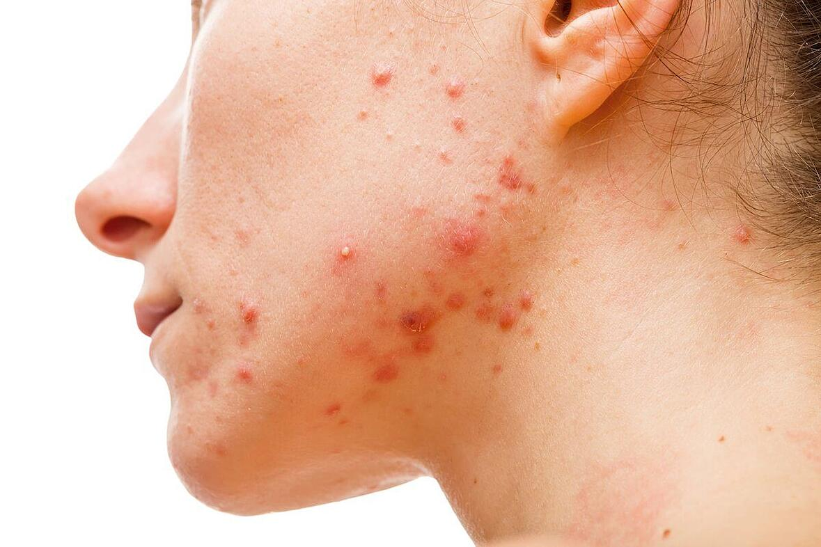types of inflammatory acne