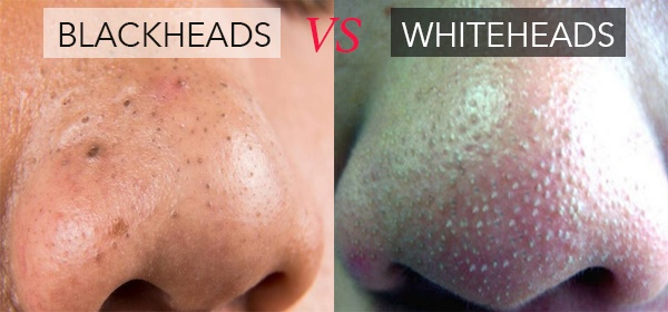 whitehead blackhead