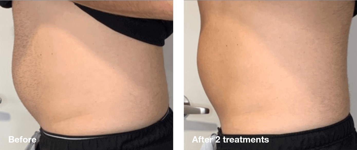 Bliss-Laser-Fat-Reduction