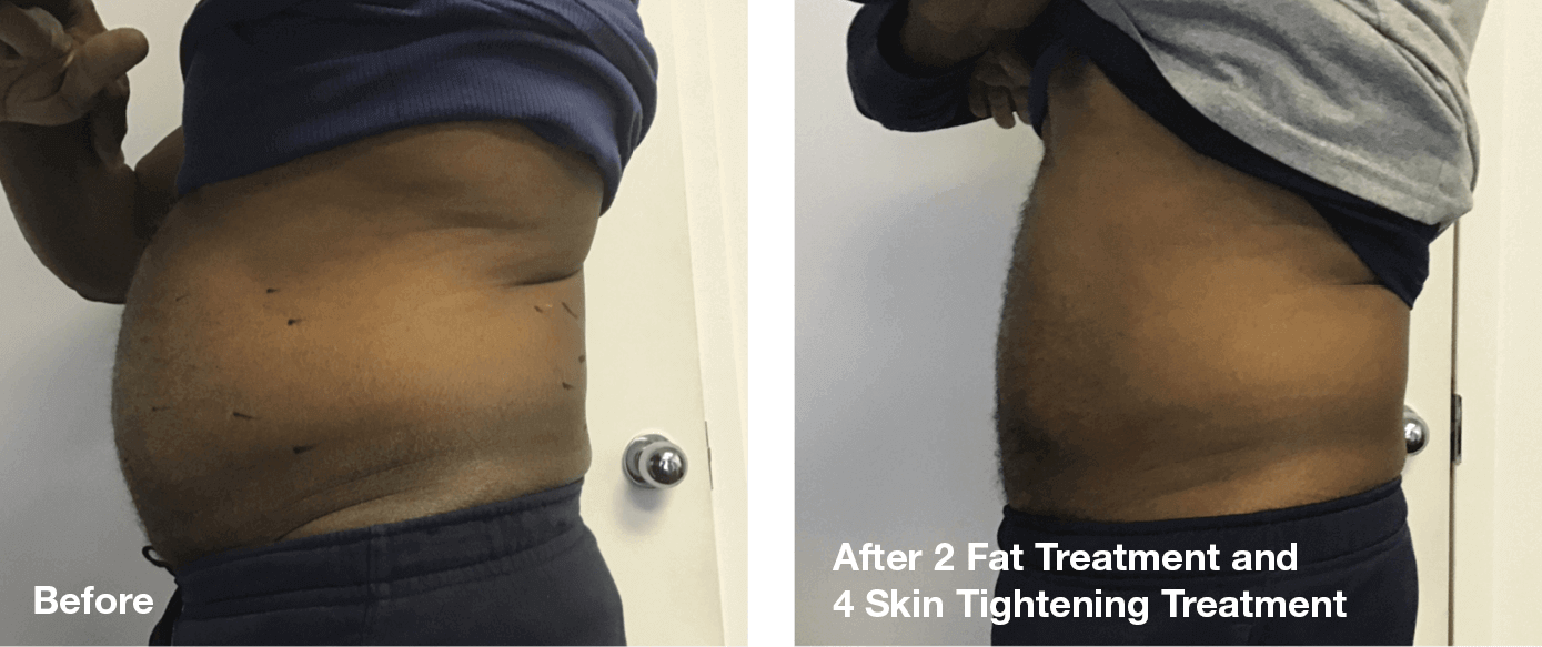 Bliss-Laser-Fat-Reduction11