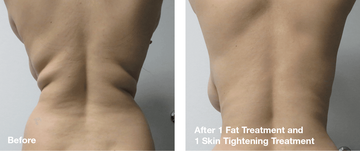 Bliss-Laser-Fat-Reduction13