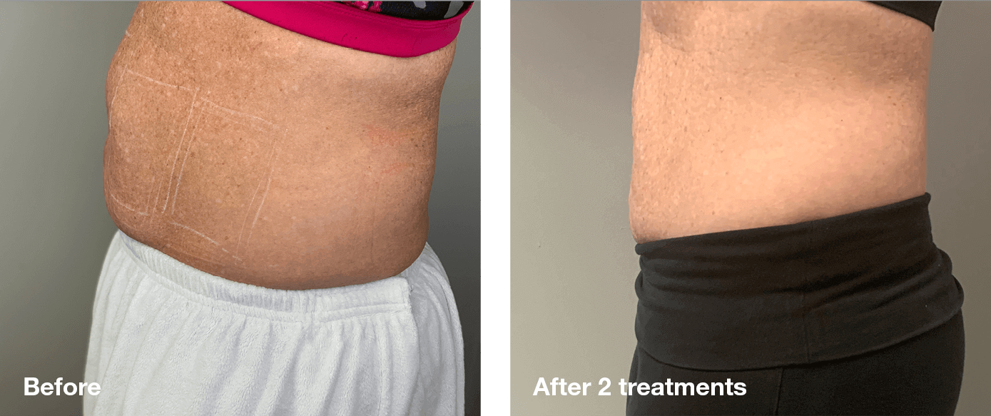 Bliss-Laser-Fat-Reduction2
