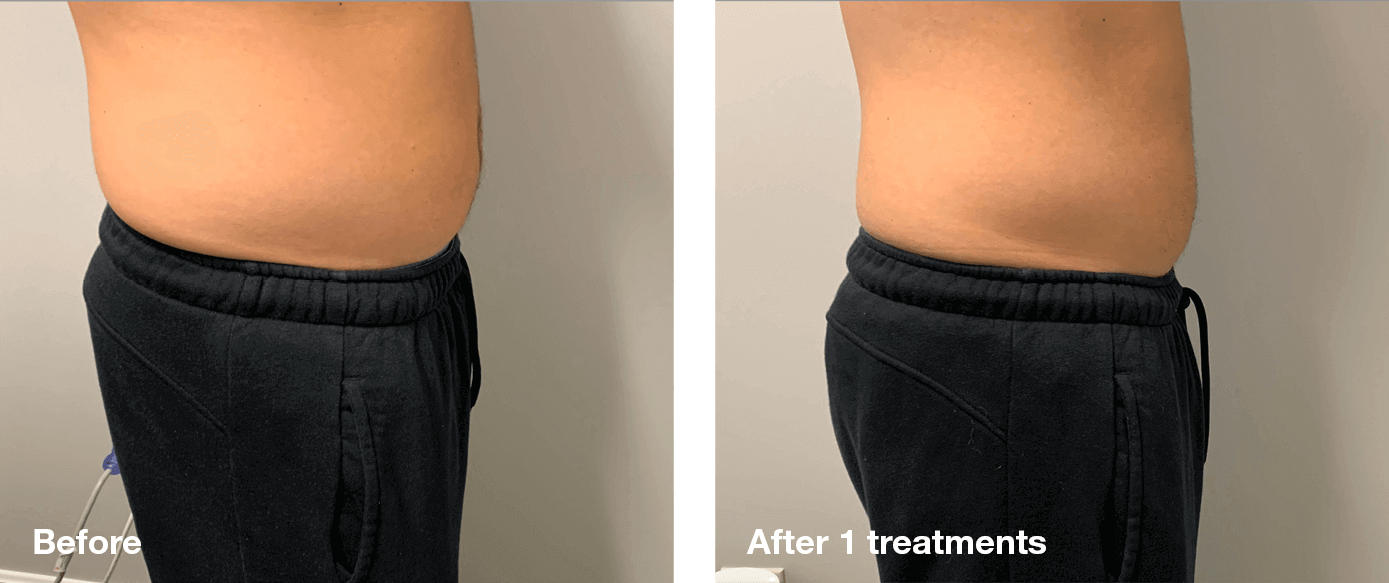 Bliss-Laser-Fat-Reduction4