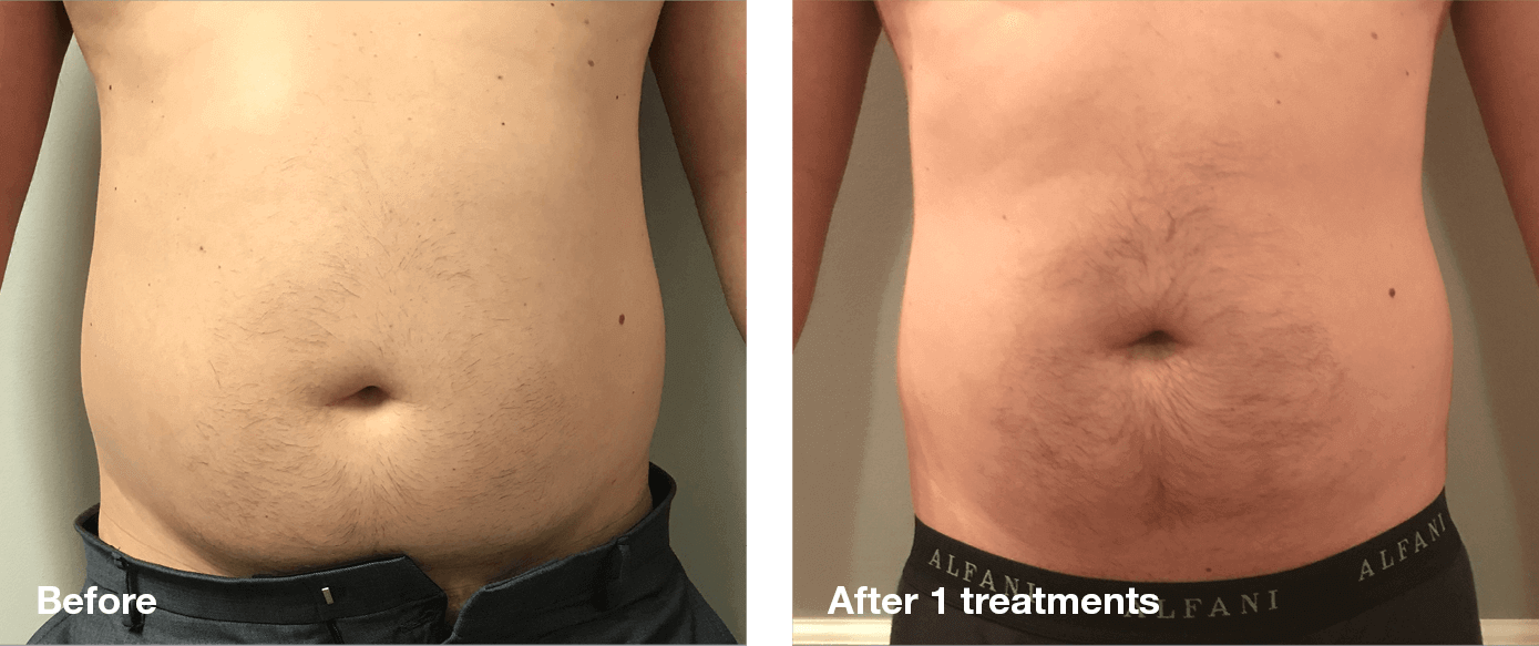 Bliss-Laser-Fat-Reduction6