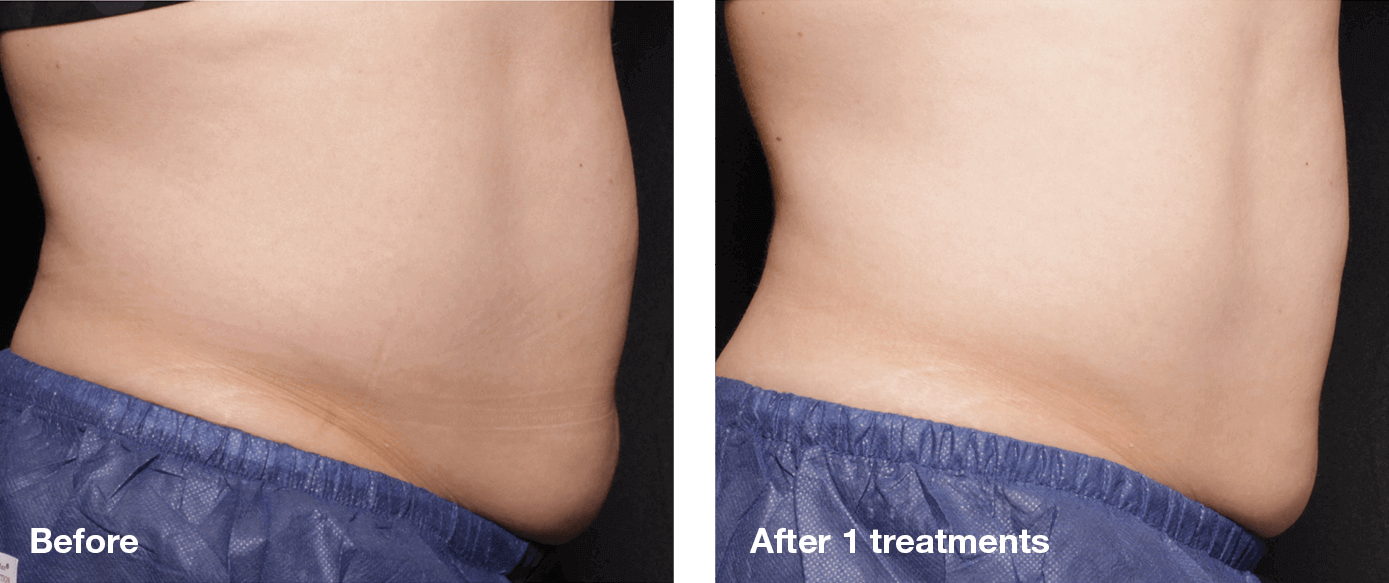 Bliss-Laser-Fat-Reduction7