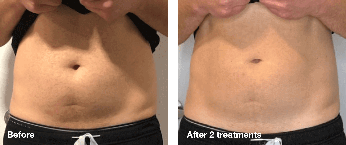 Bliss-Laser-Fat-Reduction9